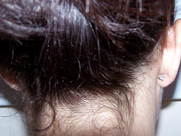 cool What do lice eggs look like on hair? ....... the full post ...