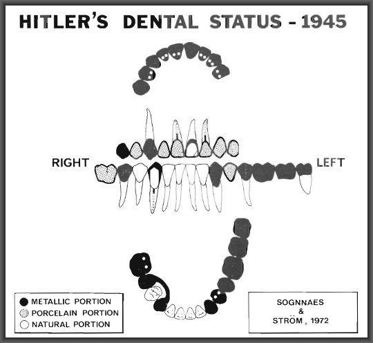 adolf hitler dental chart
