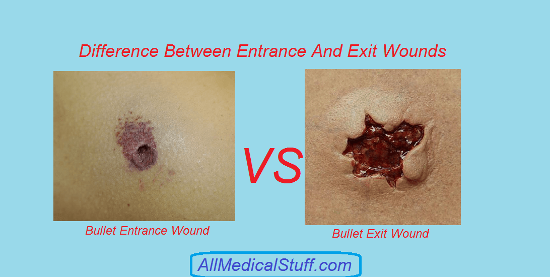 Difference Between Foyer And Entry : Difference between entrance and exit gunshot wounds all