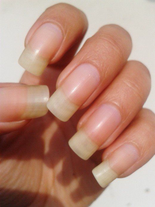 Are You Feeling Embarrment Because Of Yellow Tinted Nails Then Must Be Looking For Some Quick Home Remes Nail Whitening
