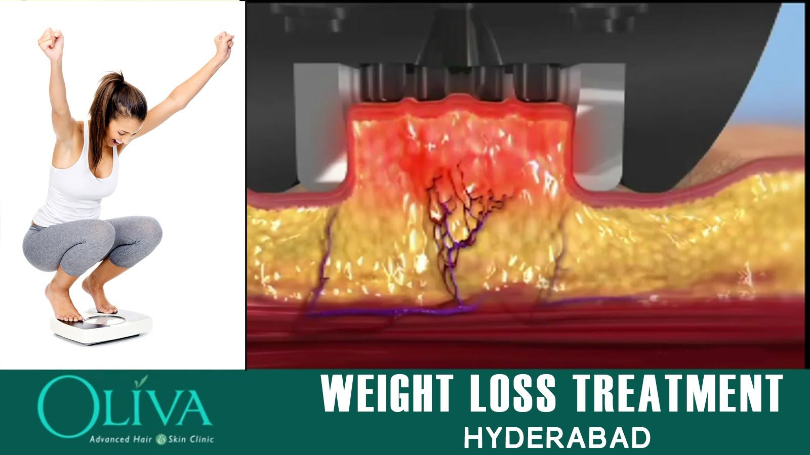 will armour thyroid cause weight loss