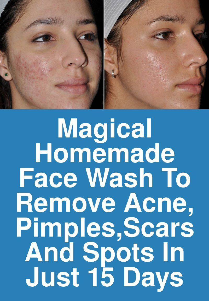 Magical homemade face wash to remove acne pimplesscars and spots