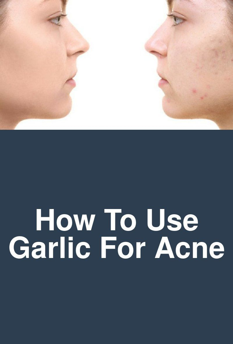 how to use garlic for acne garlic was used to protect the skin from