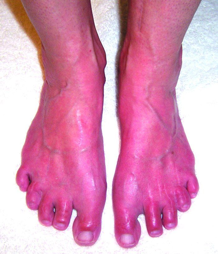 Erythromelalgia is a rare and frequently devastating