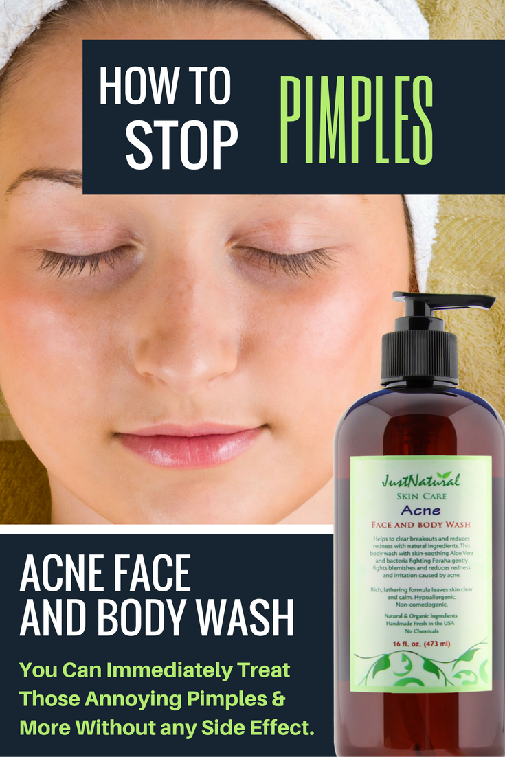 Acne Vinegar Face Wash  This unique non soap acne cleanser is made