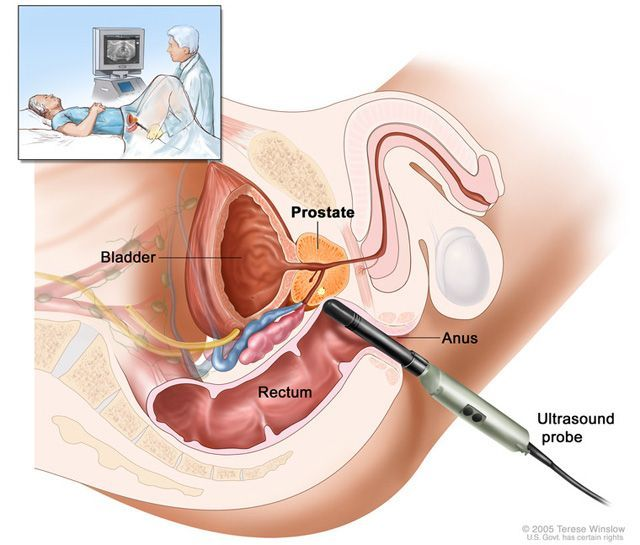How to locate prostate gland
