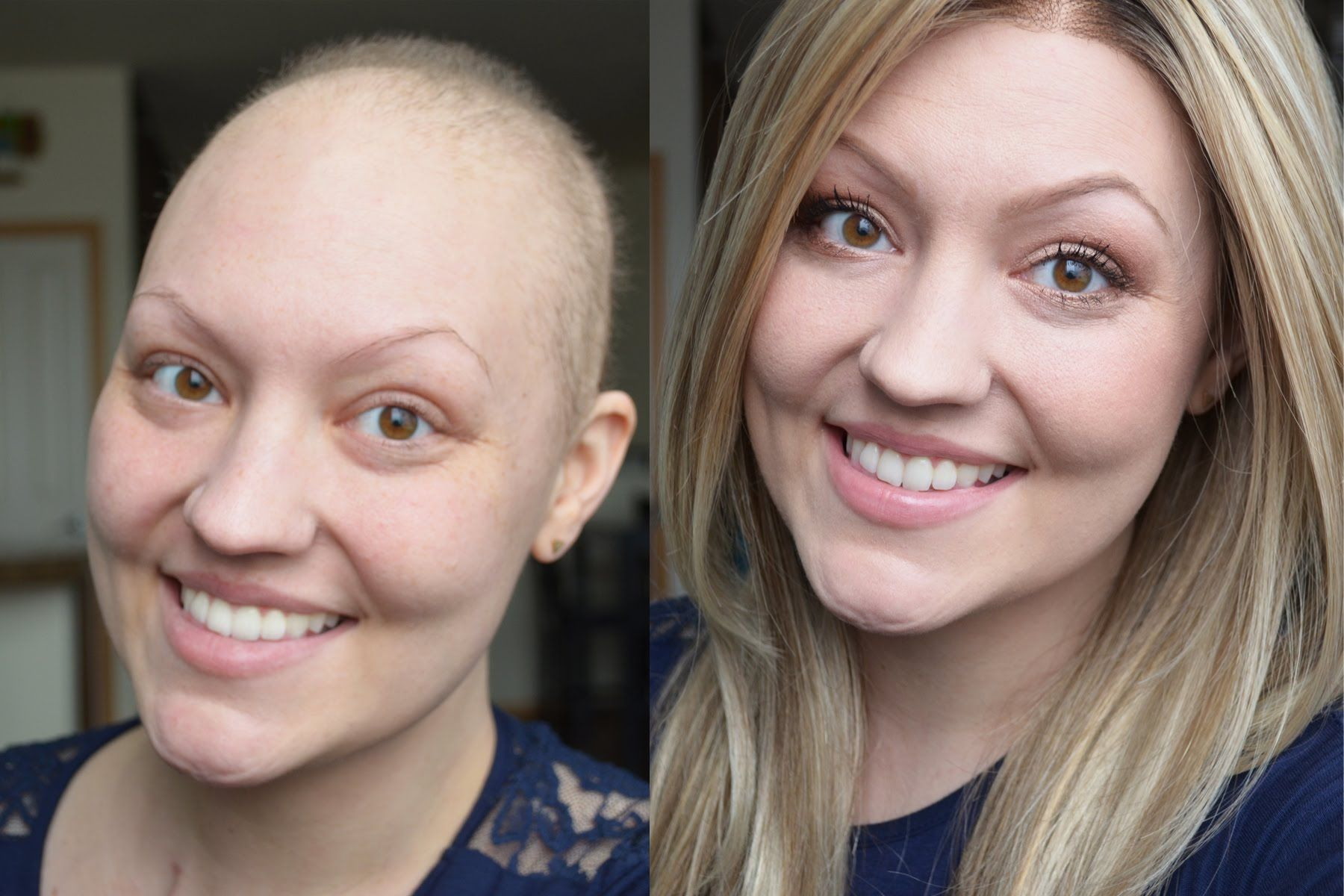 "FULL MAKEUP TUTORIAL FOR CHEMO PATIENTS ""GOTO"" NEUTRAL"
