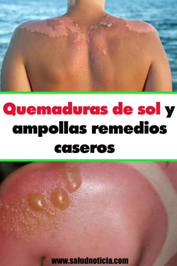 Remedios caseros para quemaduras de sol en bebes