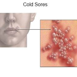 how to know when a cold sore is healed