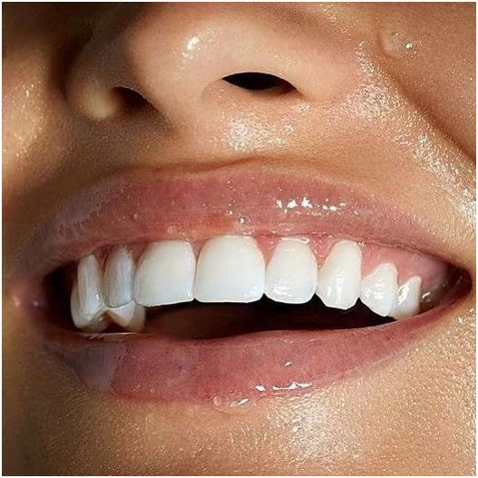 How to Keep Teeth Healthy and White | Dental Care | Beauty makeup
