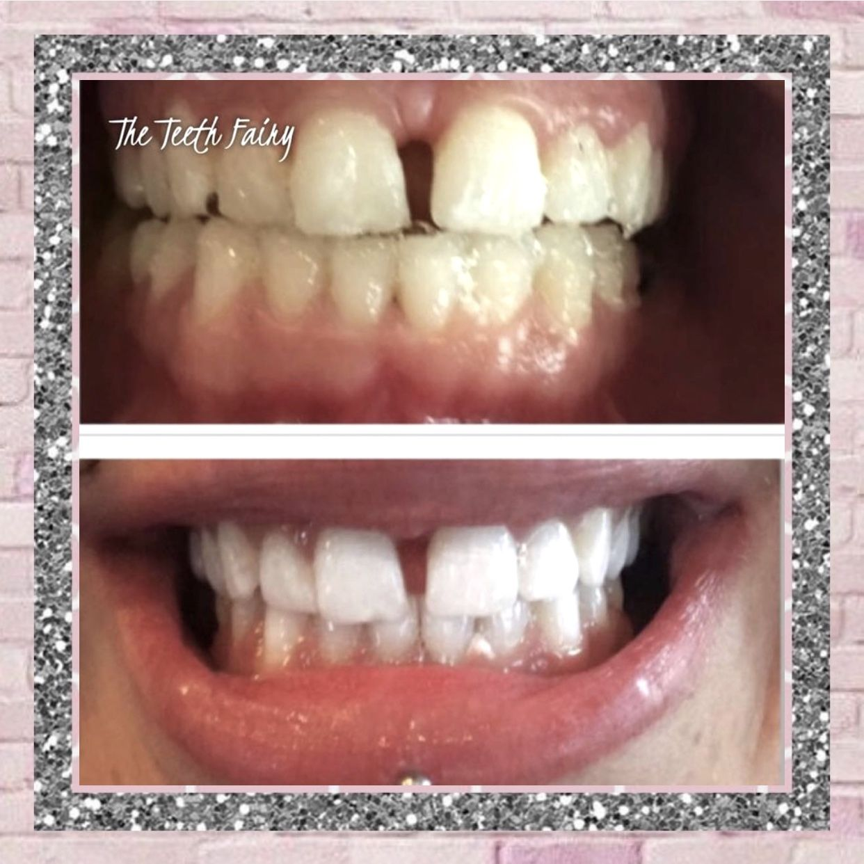 Pin by The Hot Mess Express on Tooth Gems   Tooth gem ...