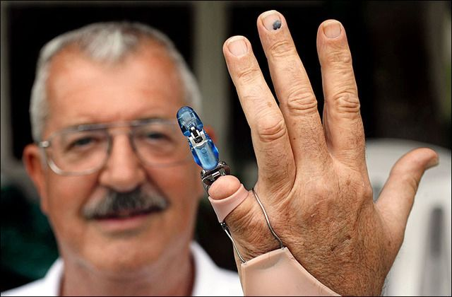 Finger and Partial Hand Prosthetic Options