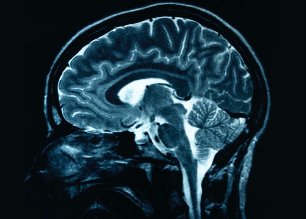 Mri of human brain mri scans pinterest mri of human brain ccuart Choice Image
