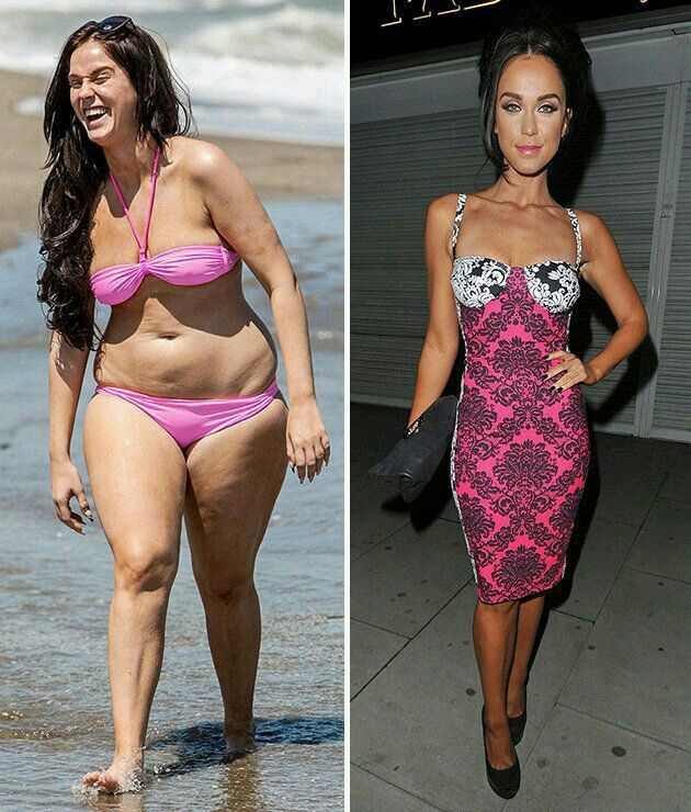 Average weight loss with obalon