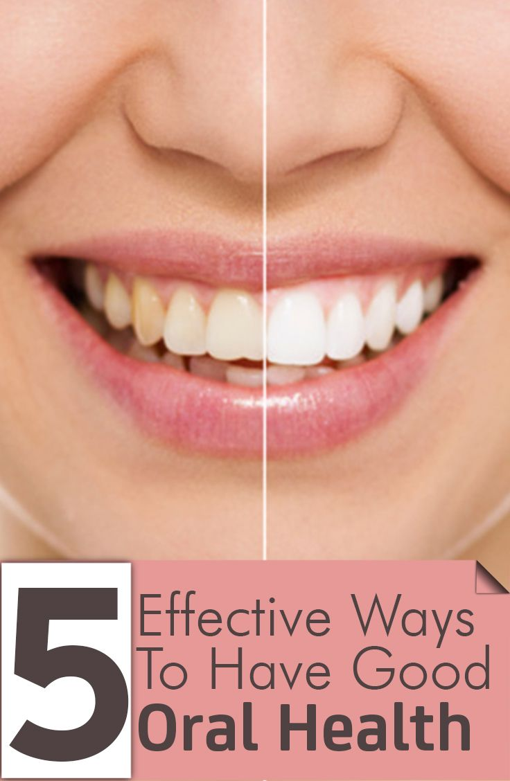 f7d3fd7d1b20 5 Effective Ways To Have Good Oral Health GLEN HILL DENTAL