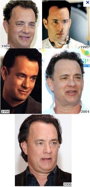Celebrity hair transplants 2019