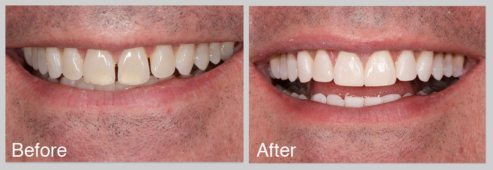 Fixing teeth gap can be done in many ways some dentists