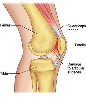 Ramuan alami sakit sendi lutut