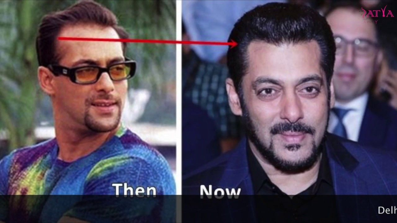 Celebrity Hair Transplant Is In News These Days Salman Khan Has Got