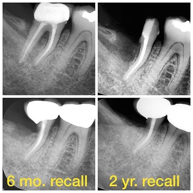 Dr Mahri محمد مهري On Instagram Repost Of Nydeggerendo Via Easyrepost طبعا هنا حالة تثبت ان طبيب الاسنان يحا Dental Fun Dental Jobs Dental Life