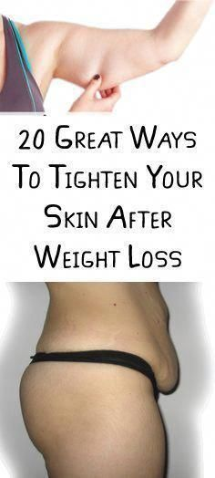 20 Great Ways To Tighten Your Skin After Weight Loss | Healthy Life Fitness #Ski...#fitness #great #...