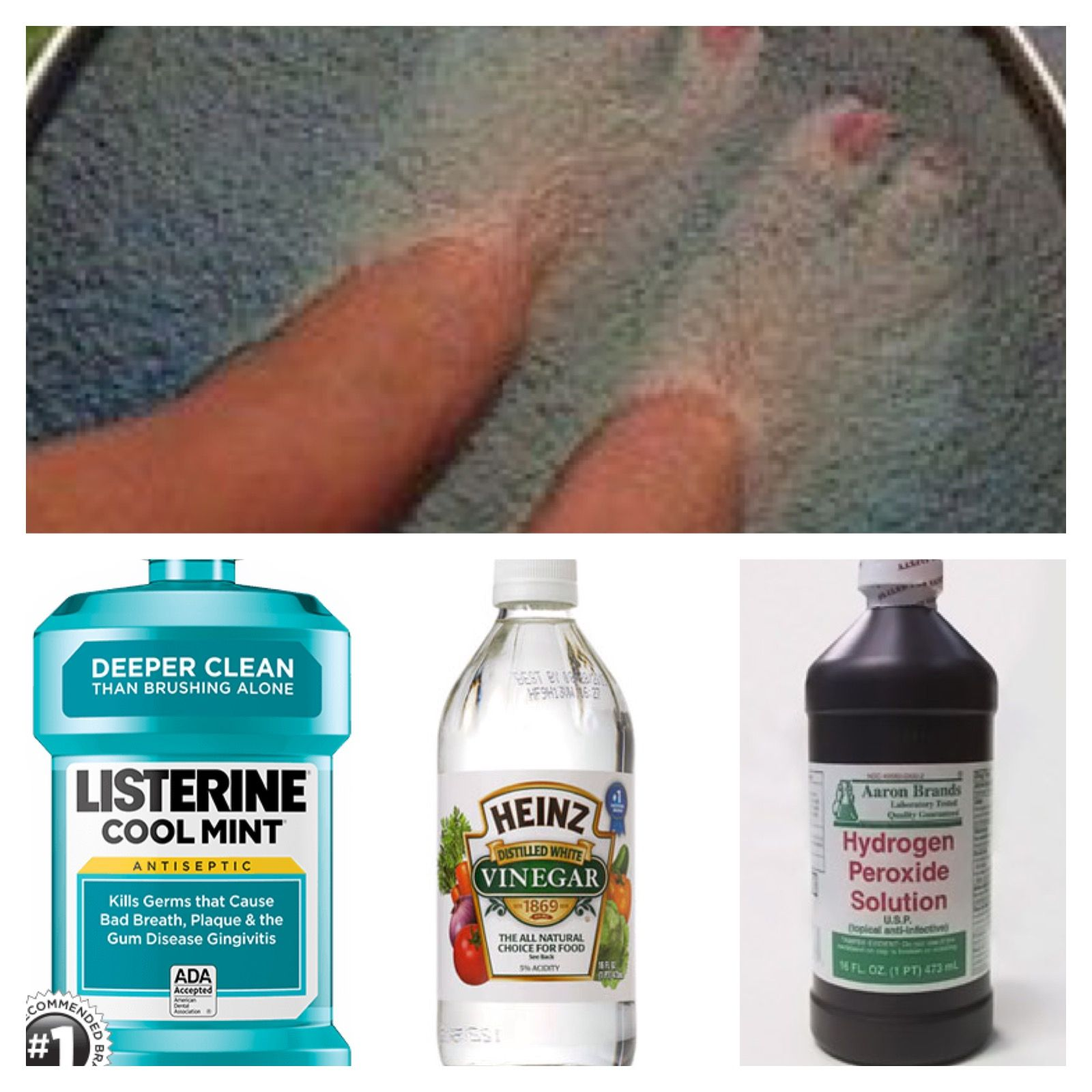 To Kill Toe Nail and Foot Fungus. 1/4 cup of each, listerine ...