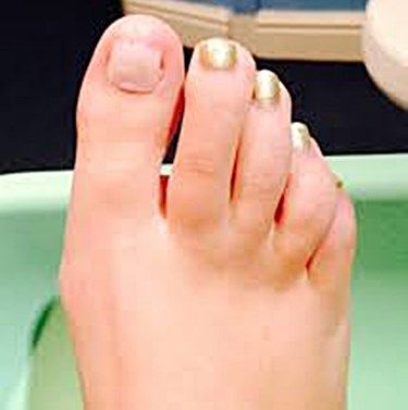 Toenail Regrowth After a Fungal Infection | beauty secrets | Toe ...