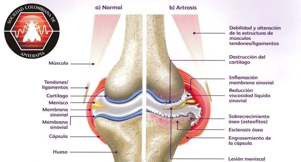 Que es la artrosis artrosis pinterest - Alimentos para mejorar la artrosis ...