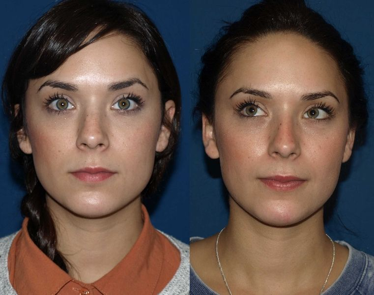 Best Nose Surgeon Nose job, Rhinoplasty, Rhinoplasty