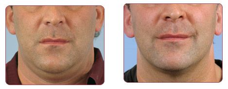 Thermage Neck (Skin Tightening) before and after  Avanti