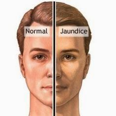 jaundice is a serious condition which could even be fatal