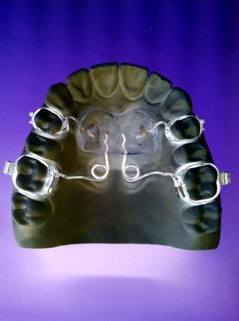 Pendulum Pendel Apparatur Distalisieren Distalization Kieferorthopadie Orthodontics Zahnspange Braces Kieferorthopadie Zahnspange Orthopadie