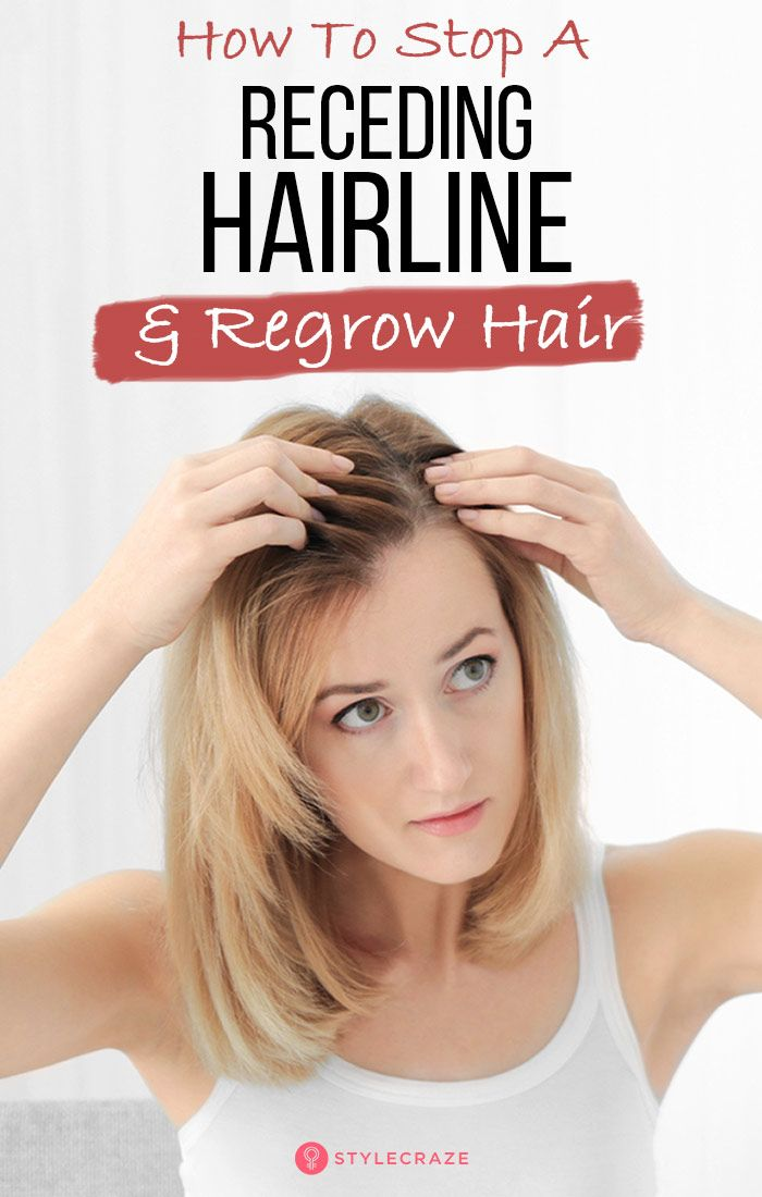 how to stop and regrow a receding hairline