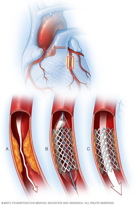 Angina treatment: Stents, drugs, lifestyle changes — What's best? - Mayo Clinic
