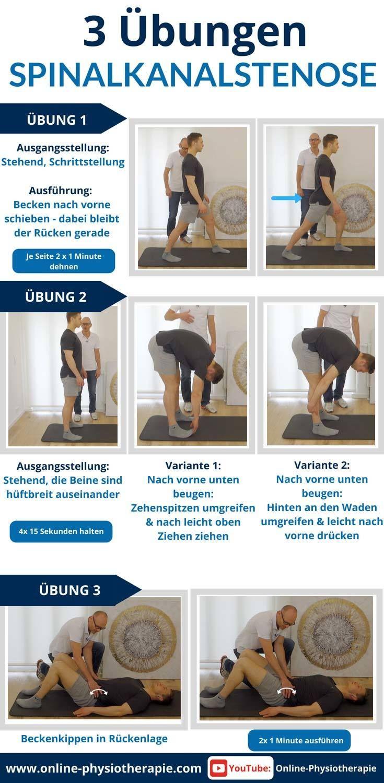 Spinalkanalstenose - 3 Übungen für zu Hause (sofort ...