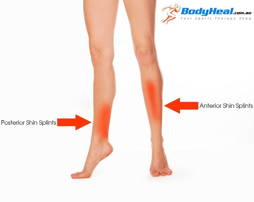 posterior shin splints | never-never-never-give-up | pain in, Human Body