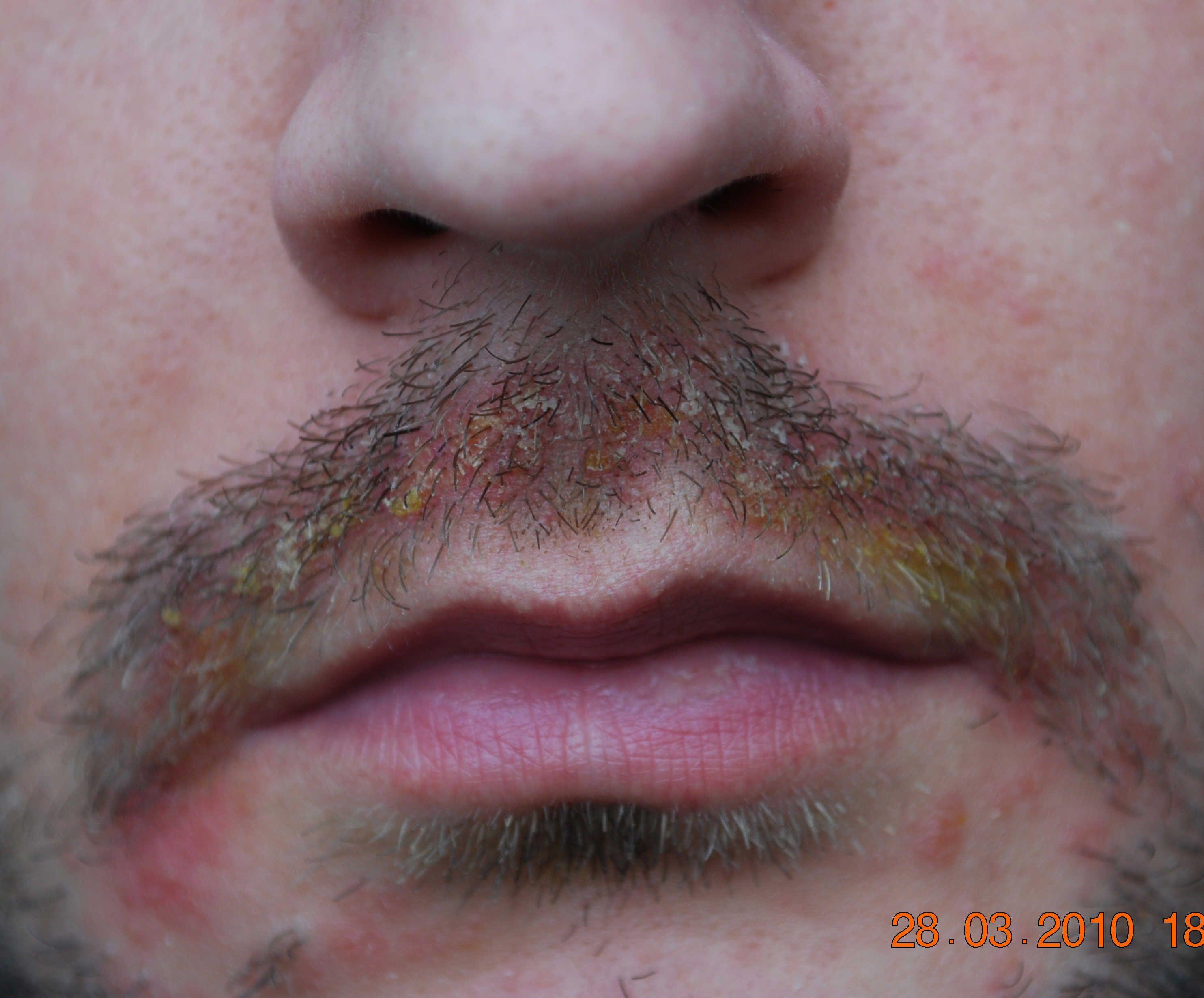 4 Seborrheic Dermais Effects On Face