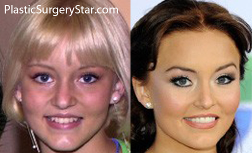 Angelique Boyer Has Plastic Surgery To Make Her Nose More