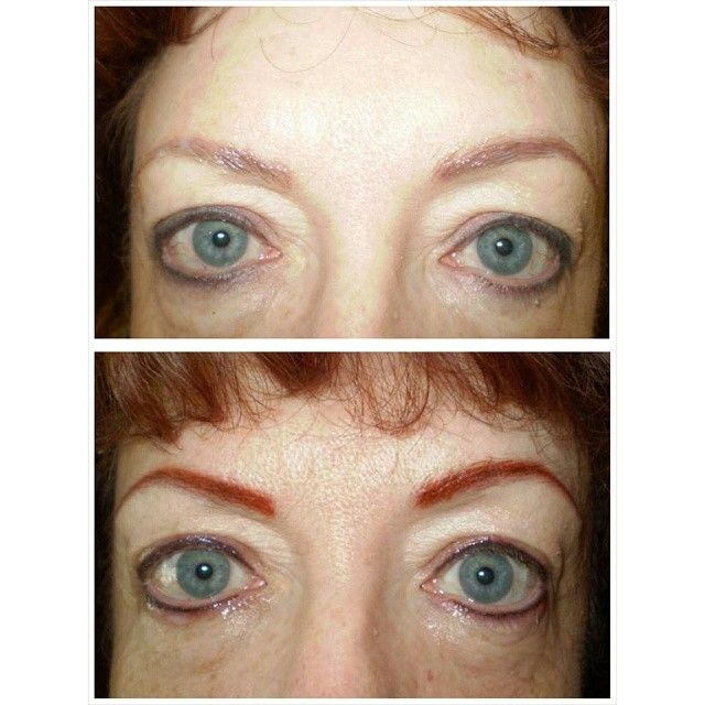 Cosmetic Eyebrow Tattooing Before And After This Was Not Done By A