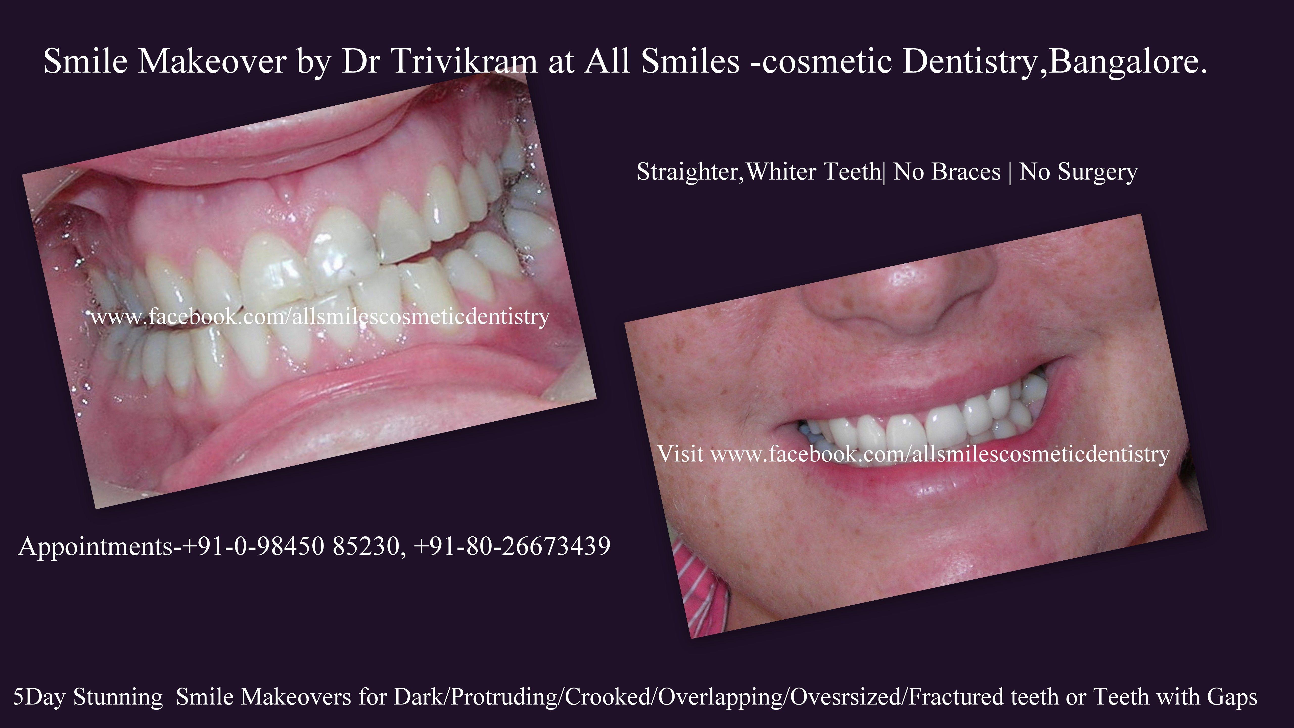 Dental Smile Makeover Porcelain Veneer Photosporcelain Crowns Before And Afterporcelain
