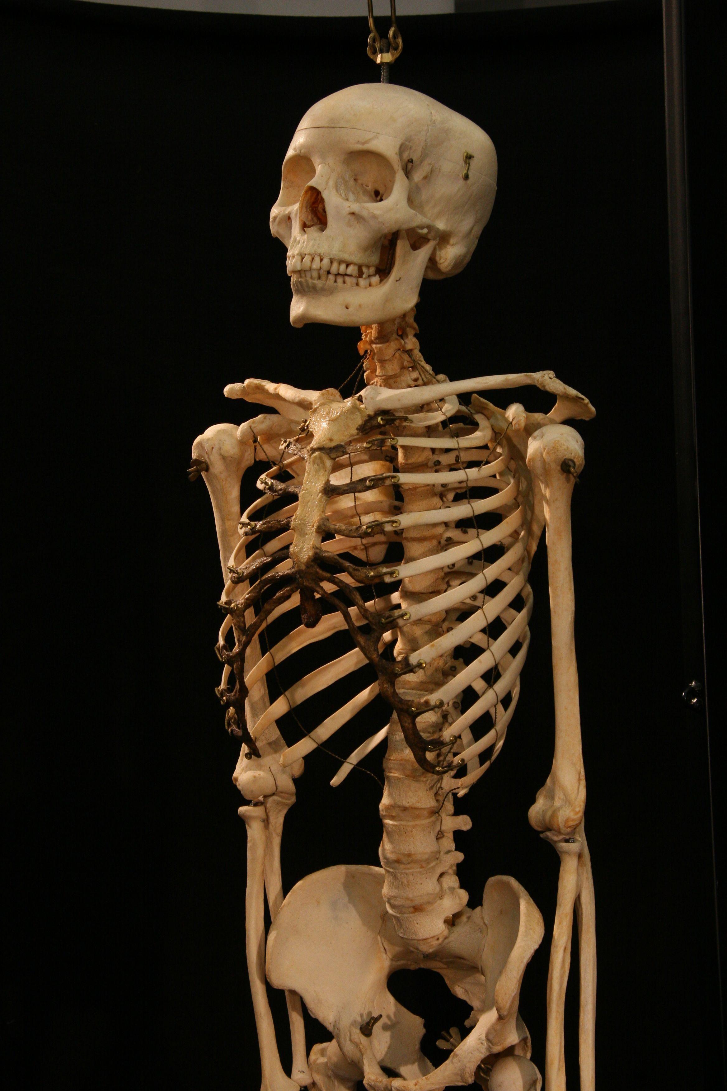 image result for real human skeleton   human bones   pinterest, Skeleton