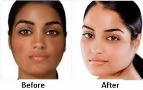 natural skin bleaching