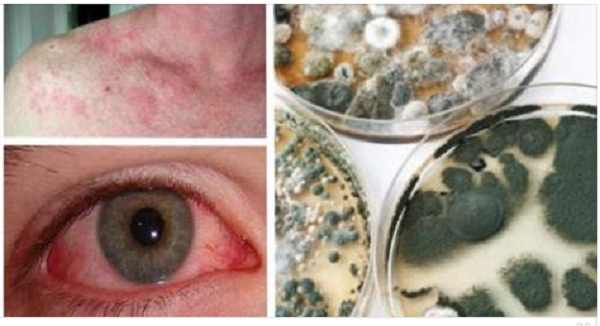 Mold Illness 17 Signs And Symptoms Of Exposure That You Should Not Ignore