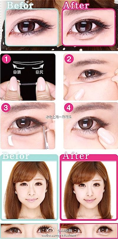 Korean Beauty Trend Before After Photos Baggy Puffy Eyes Are In