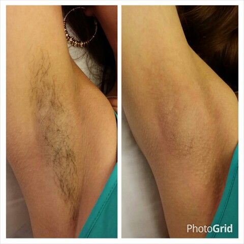 Before After Underarm Wax Call Or Text Skin Care Diva At 661 8086111 For Your Appointment 15 Best Natural Skin Care Underarm Waxing Skin Care