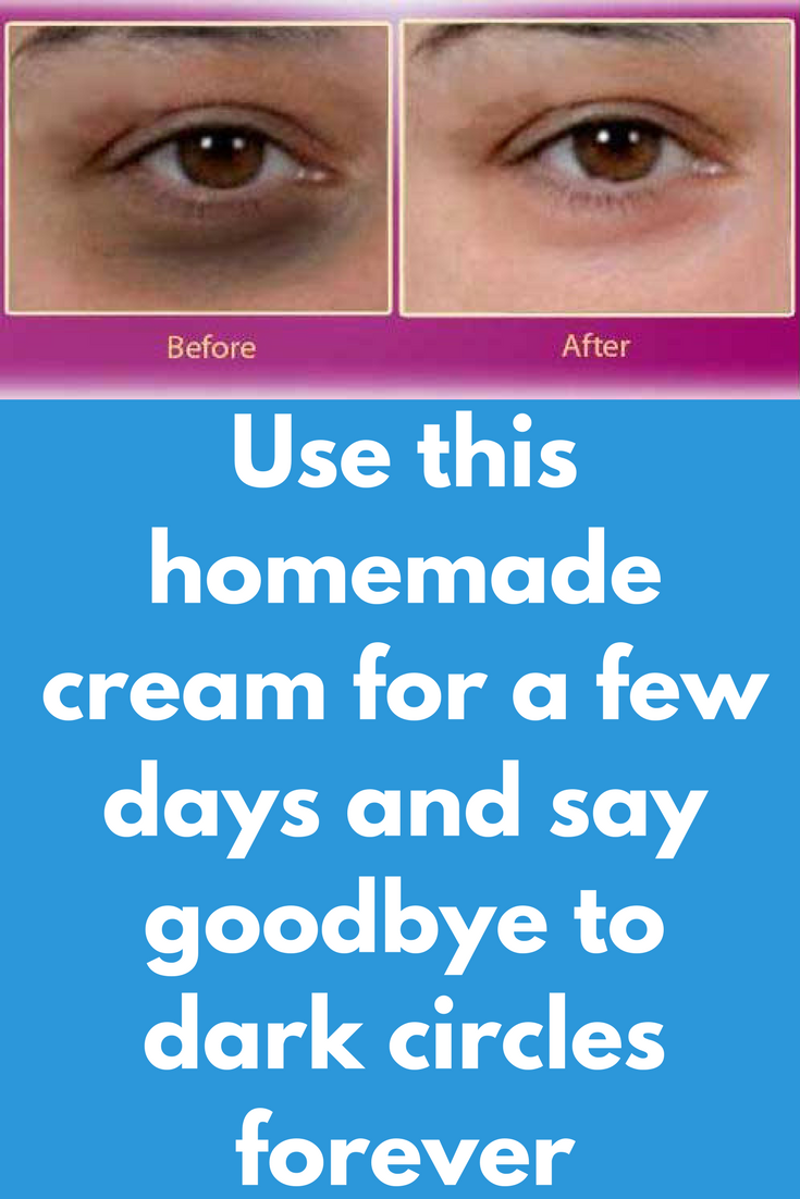 Use this homemade cream for a few days and say goodbye to ...
