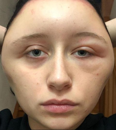 Teenager S Head Doubles In Size After She Suffers Reaction To A Hair Dye