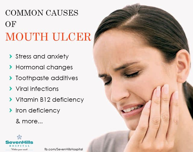 Common causes of mouth ulcer: There are many medical