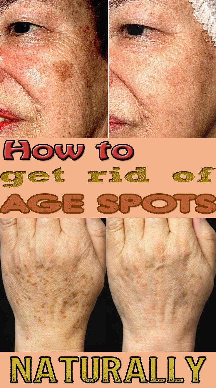 How to Get Rid Of Age Spots Naturally - BeautyHealther org | Dark