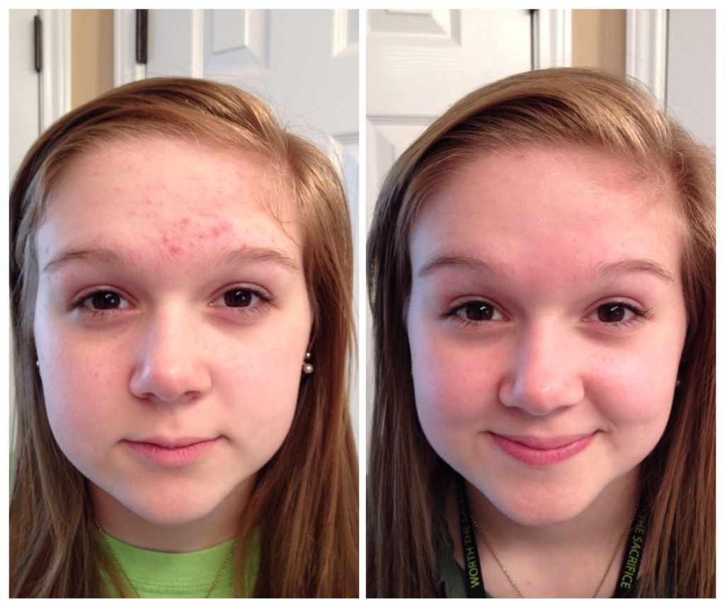 proactive before and after